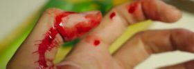 Co se děje s tělem když se řízneme a jak na hojení ran?